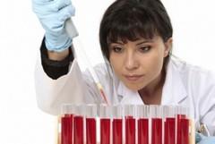 Биохимический анализ крови на креатинин