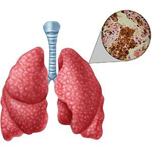 Туберкулез открытая форма 2