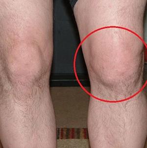Подагра коленного сустава фото узи тазобедренных суставов протокол