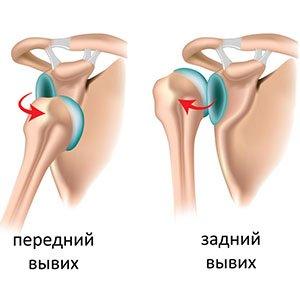 Ночные вывихи суставов эндопротезирование коленного сустава и