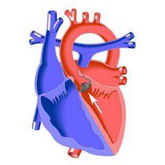 Аортальный порок сердца с преобладанием недостаточности занятия сексом