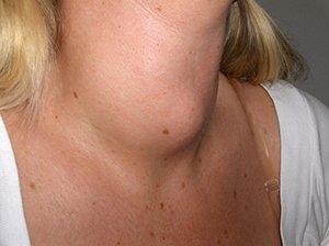 воспаление щитовидной железы