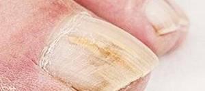 Как отвязаться через грибка ногтей
