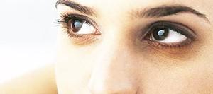 О нежели считается синяки перед глазами